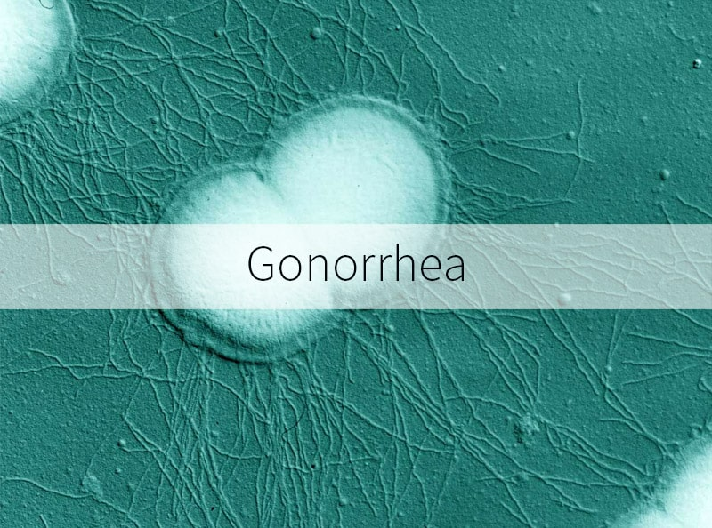 Gonorrhea information