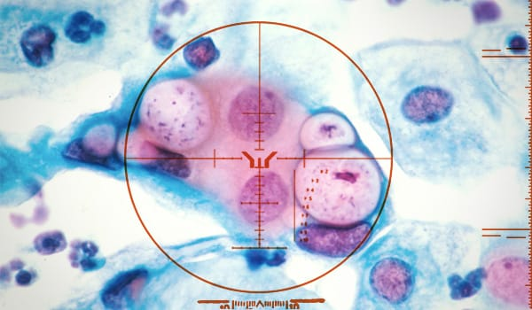 All What You Need To Know About Chlamydia Image