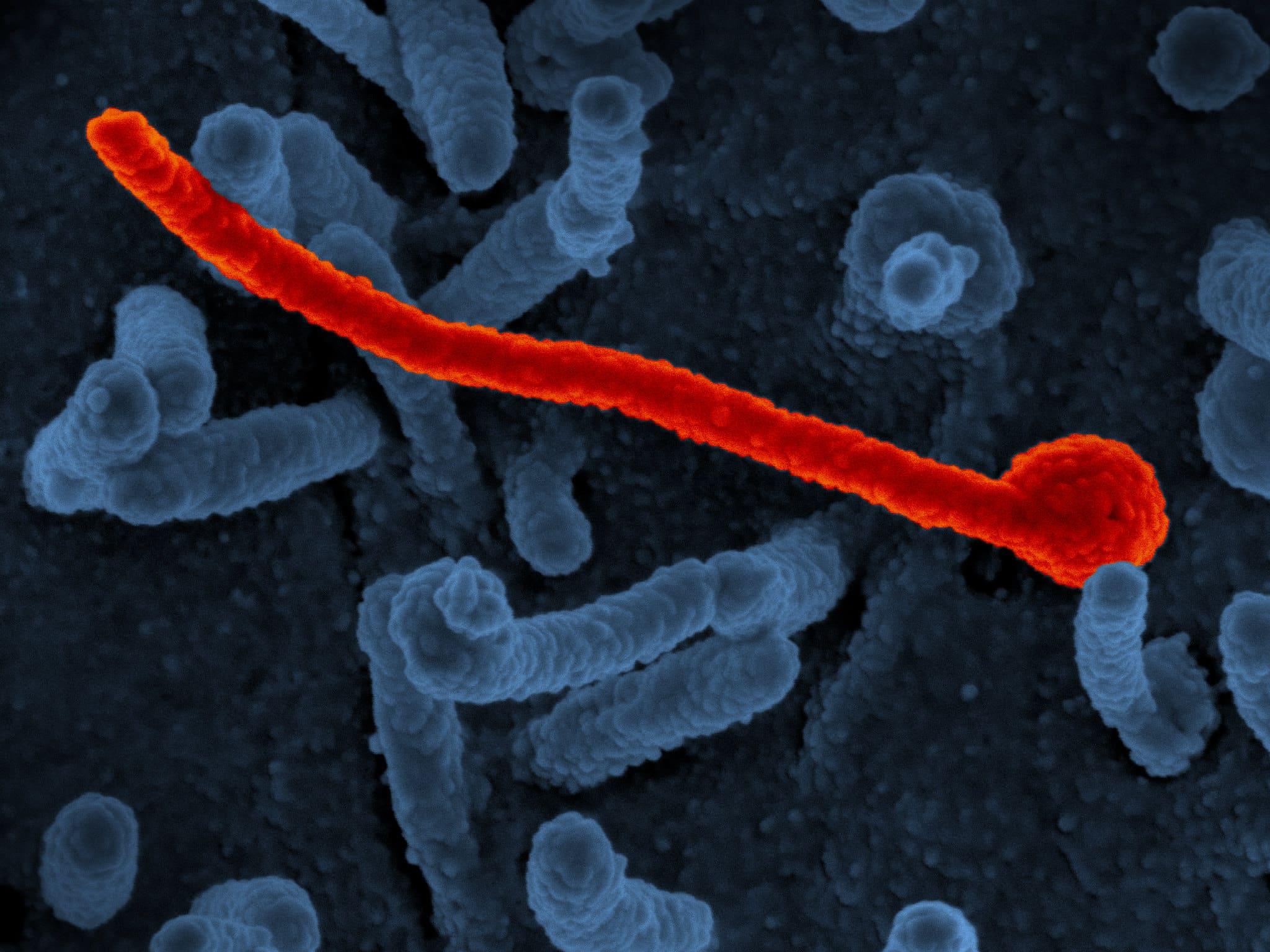 Ebola Survivors Can Pass on Disease Through Sexual Activity Image