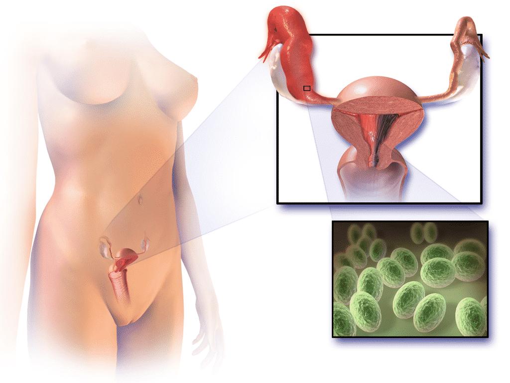 "Sexually Transmitted Disease-Causing PID ""Pelvic Inflammatory Disease"" Image"