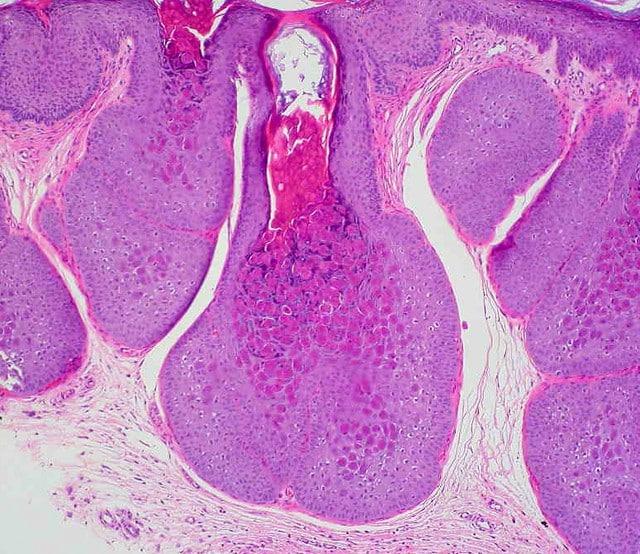 Molluscum Contagiosum Image